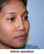 plastic_surgery_augmentation_rhinoplasty